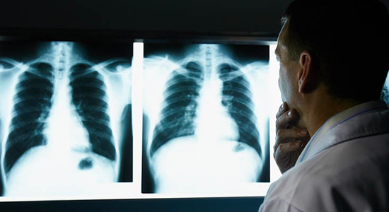 Occupational respiratory diseases: avoid biting the dust